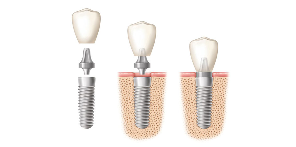 Photo of Dental Implants
